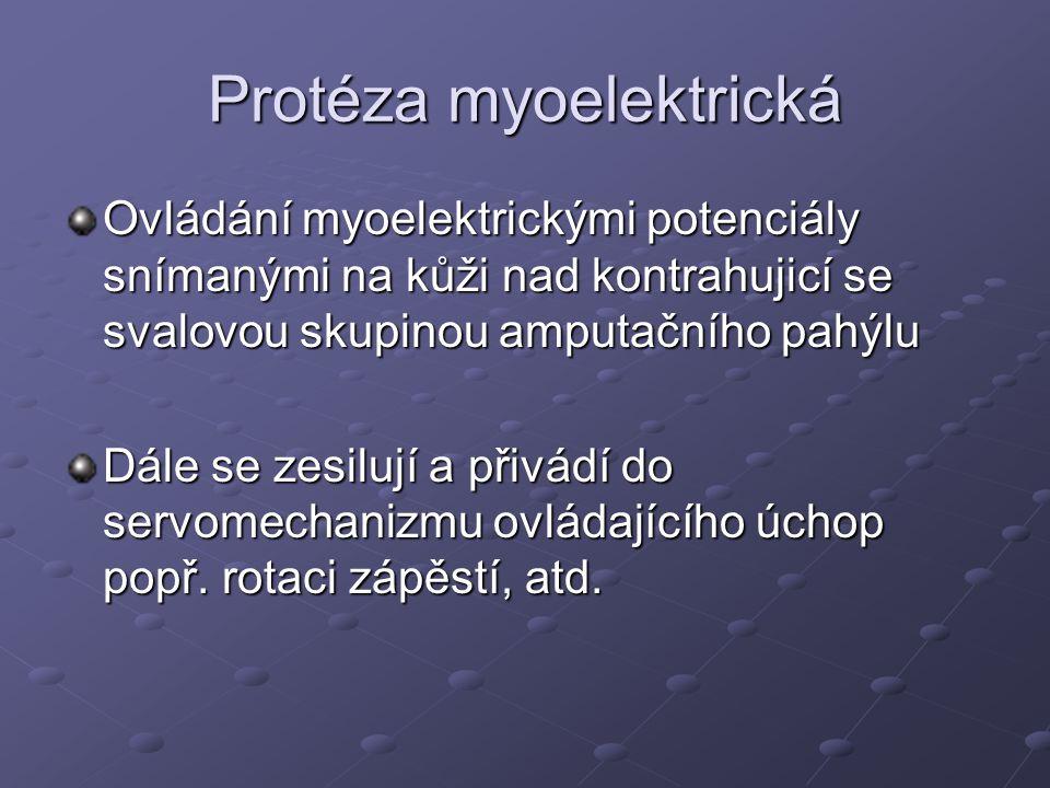 Protéza myoelektrická Před aplikací myoelektrické protézy nutný zácvik Cílené ovládání antagonistických svalových skupin Není vhodný typ protézy pro každého pacienta