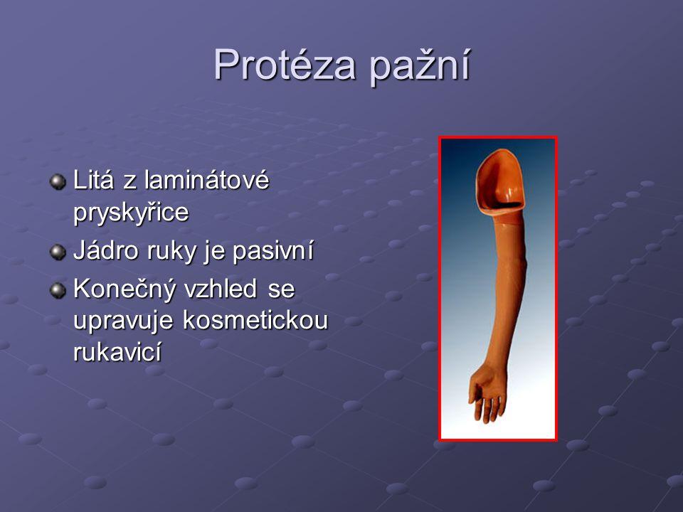 Protéza pažní sestavená z modulárních dílů Jednotlivé díly se zakrývají krytem Vybavena podle pracovních aktivit například: ( hák, kruh,atd.