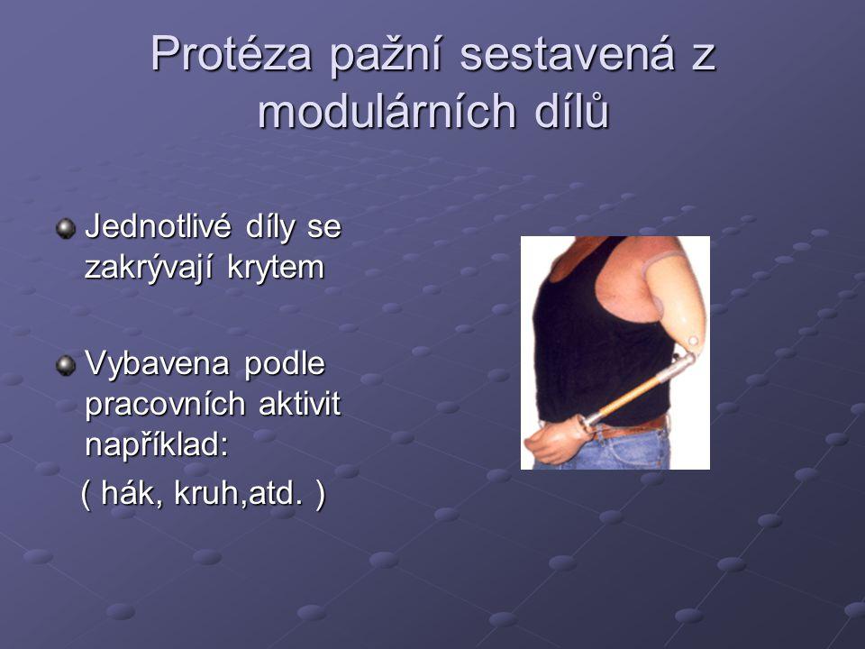 Protéza předloketní Litá z laminátové prykyřice Jádro ruky je pasivní Místo pasivního jádra může být např.
