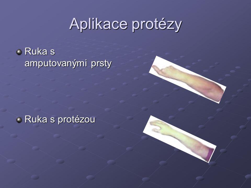 Protéza myoelektrická Založeny na přenosech svalových potenciálů z elektrod umístěných v pahýlovém lůžku do protézy