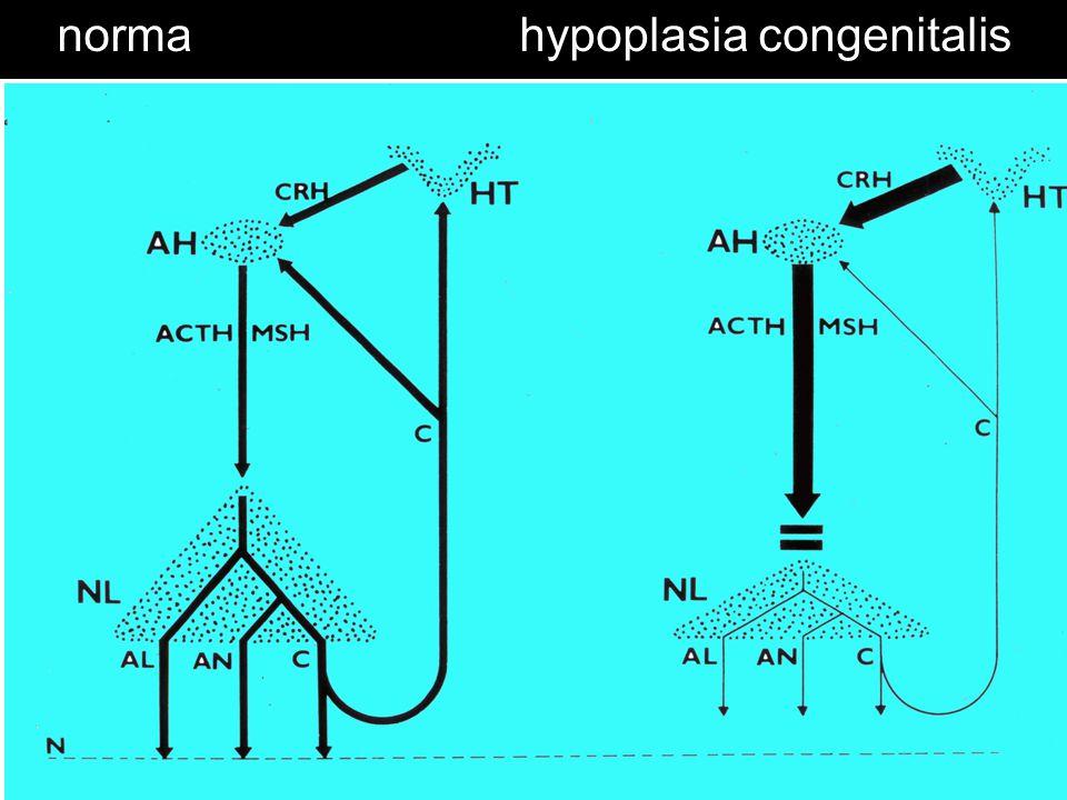 normahypoplasia congenitalis