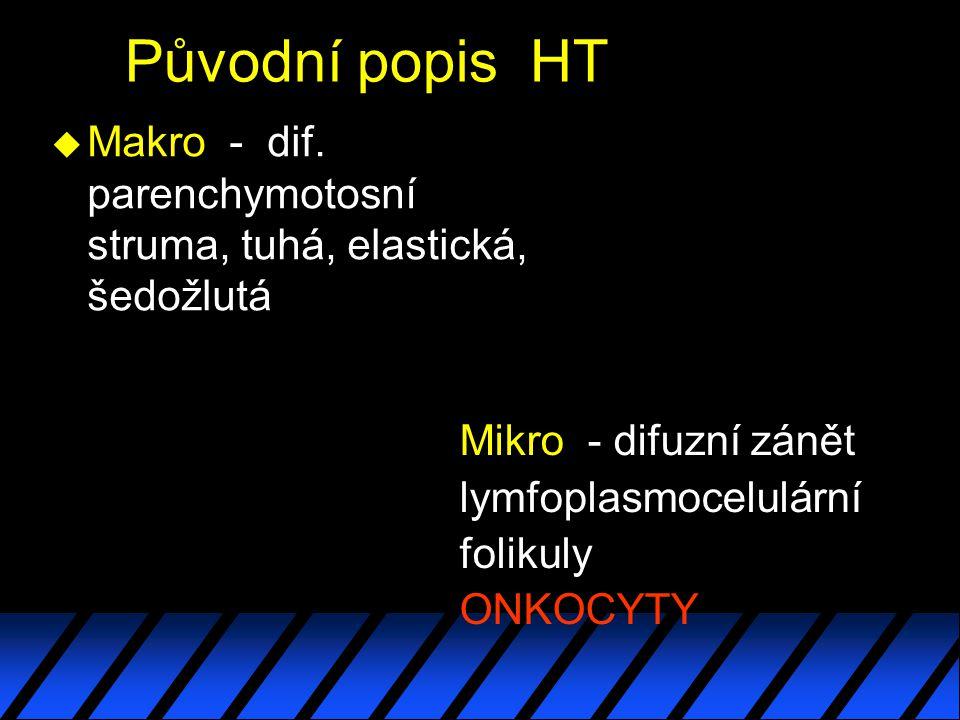 Původní popis HT u Makro - dif.