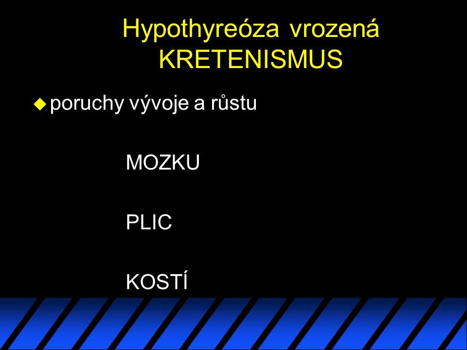 Hypothyreóza vrozená KRETENISMUS u poruchy vývoje a růstu MOZKU PLIC KOSTÍ