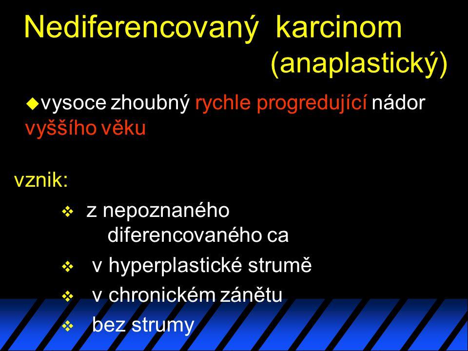 Nediferencovaný karcinom (anaplastický) u vysoce zhoubný rychle progredující nádor vyššího věku vznik:  z nepoznaného diferencovaného ca  v hyperplastické strumě  v chronickém zánětu  bez strumy