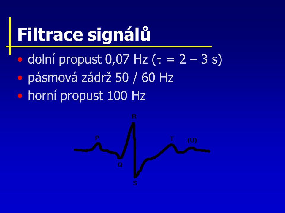 Filtrace signálů dolní propust 0,07 Hz (  = 2 – 3 s) pásmová zádrž 50 / 60 Hz horní propust 100 Hz