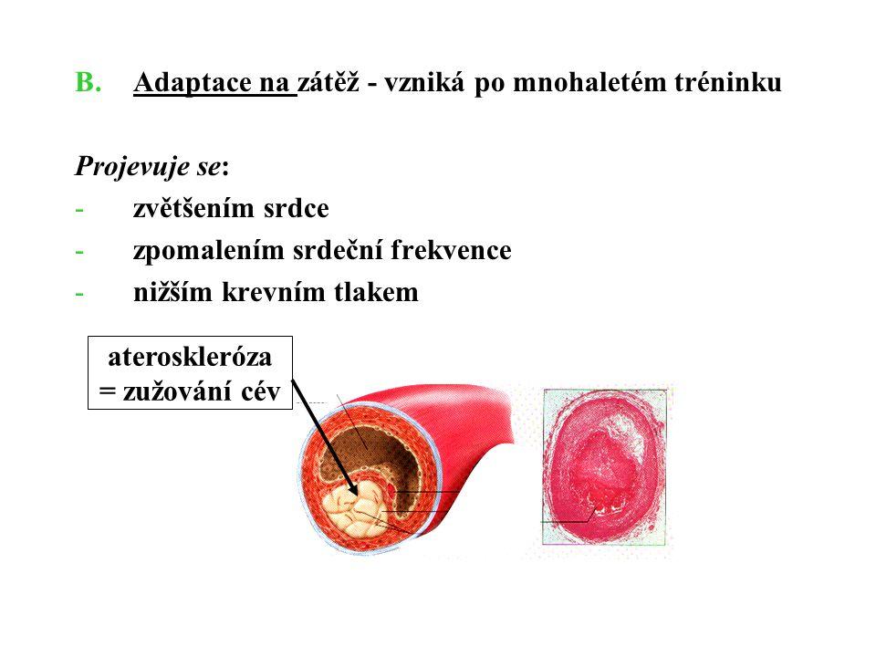 B.Adaptace na zátěž - vzniká po mnohaletém tréninku Projevuje se: -zvětšením srdce -zpomalením srdeční frekvence -nižším krevním tlakem ateroskleróza
