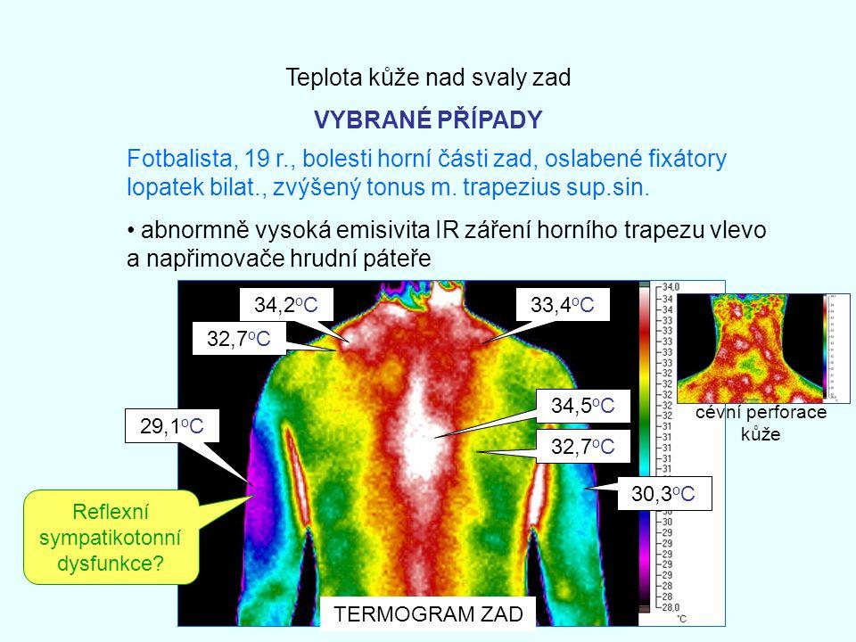 Teplota kůže nad svaly zad VYBRANÉ PŘÍPADY Fotbalista, 19 r., bolesti horní části zad, oslabené fixátory lopatek bilat., zvýšený tonus m. trapezius su