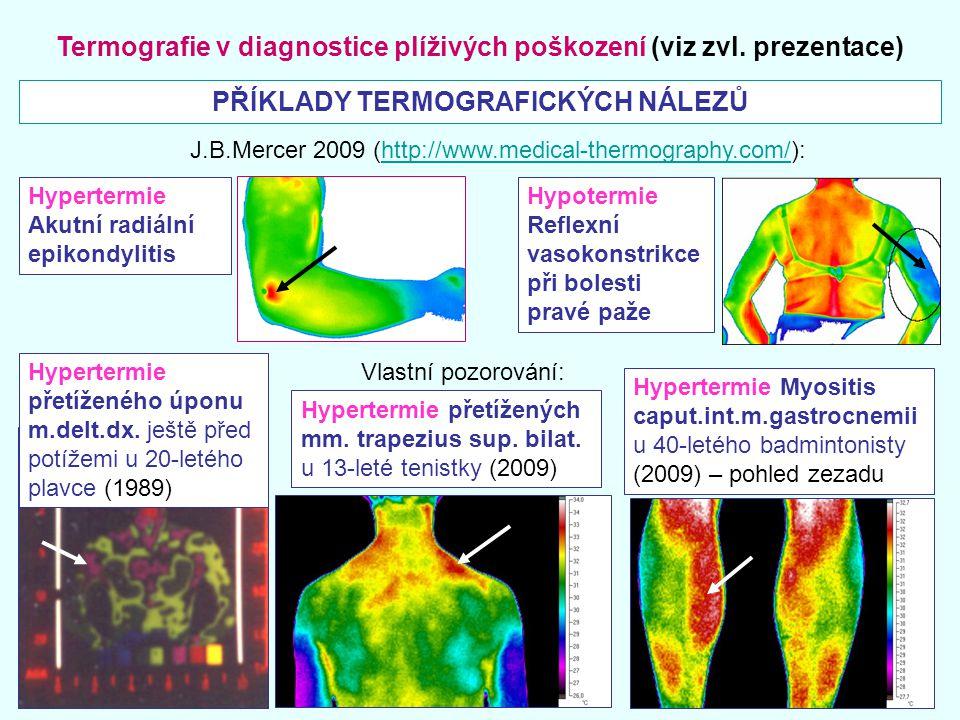 Termografie v diagnostice plíživých poškození (viz zvl. prezentace) PŘÍKLADY TERMOGRAFICKÝCH NÁLEZŮ Hypertermie Akutní radiální epikondylitis Hypoterm
