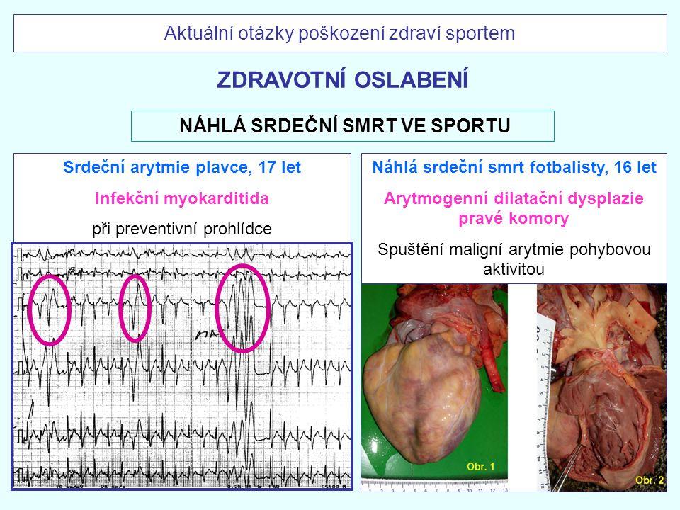 Náhlá srdeční smrt fotbalisty, 16 let Arytmogenní dilatační dysplazie pravé komory Spuštění maligní arytmie pohybovou aktivitou Srdeční arytmie plavce