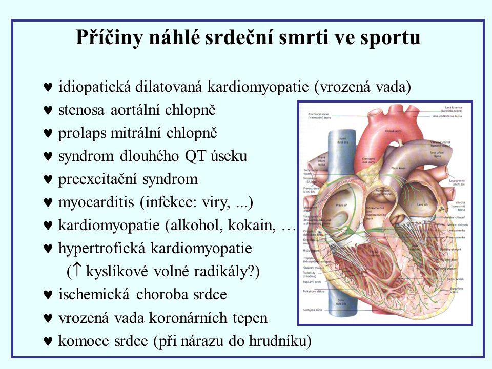 Příčiny náhlé srdeční smrti ve sportu idiopatická dilatovaná kardiomyopatie (vrozená vada) idiopatická dilatovaná kardiomyopatie (vrozená vada) stenos