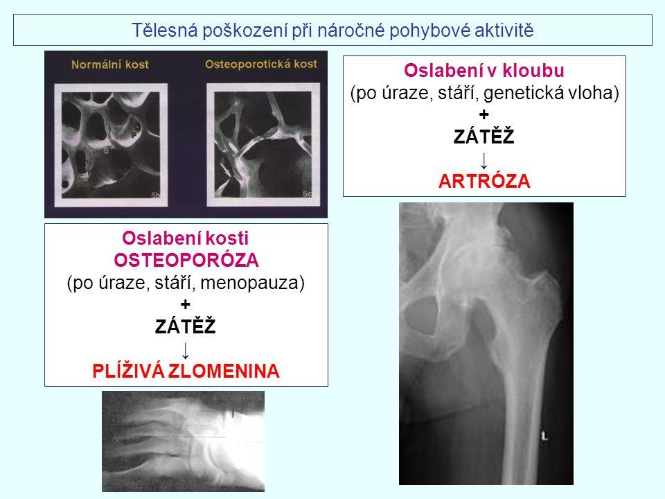 Oslabení kosti OSTEOPORÓZA (po úraze, stáří, menopauza) + ZÁTĚŽ ↓ PLÍŽIVÁ ZLOMENINA Tělesná poškození při náročné pohybové aktivitě Oslabení v kloubu