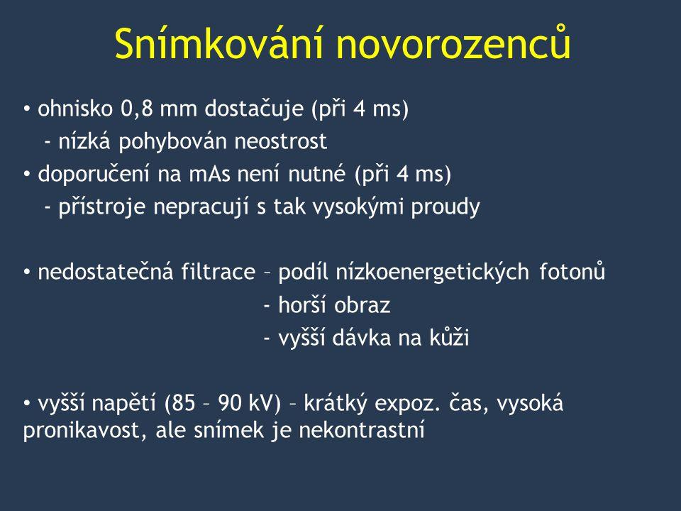 Snímkování novorozenců klinický audit perinatologických a intermediárních center dotazníky žádné nesplňuje expoziční čas – 1 centrum pod 4 ms, ale za cenu 85 kV - 1 centrum 4-5 ms při 50 kV, 0,9 mAs - ostatní neuvedli nebo nad 12 ms - max.
