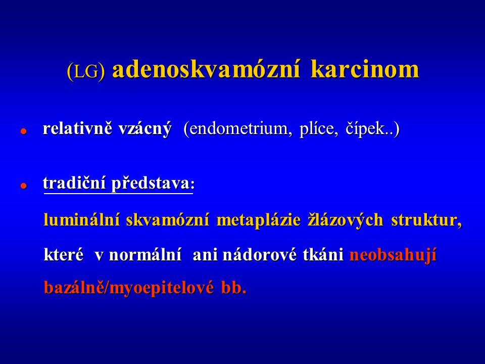 ( LG ) adenoskvamózní karcinom  relativně vzácný (endometrium, plíce, čípek..)  tradiční představa : luminální skvamózní metaplázie žlázových struktur, luminální skvamózní metaplázie žlázových struktur, které v normální ani nádorové tkáni neobsahují které v normální ani nádorové tkáni neobsahují bazálně/myoepitelové bb.