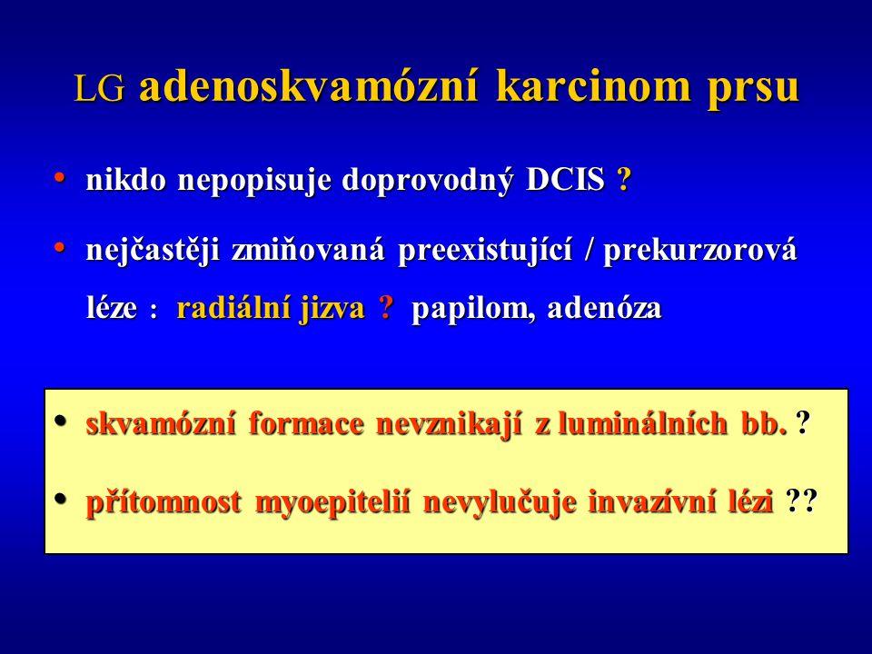 LG adenoskvamózní karcinom prsu nikdo nepopisuje doprovodný DCIS .