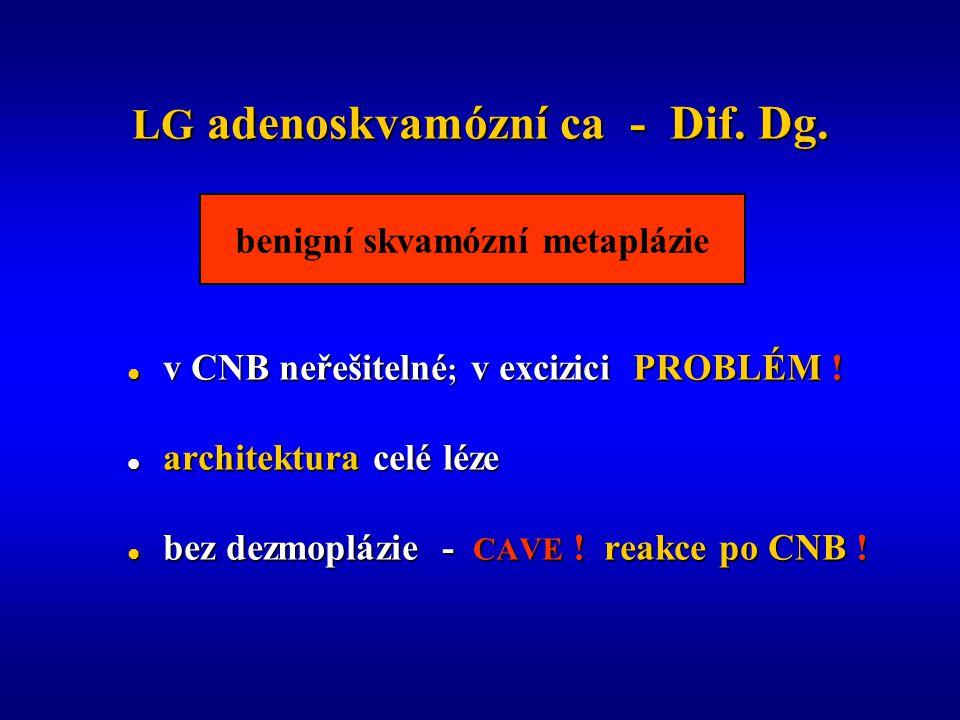 LG adenoskvamózní ca - Dif.Dg.  v CNB neřešitelné ; v excizici PROBLÉM .