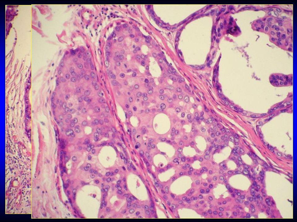 Diagnóza ( primární ) skvamózní karcinom prsu …proč ne..