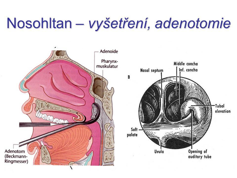 Nosohltan – vyšetření, adenotomie