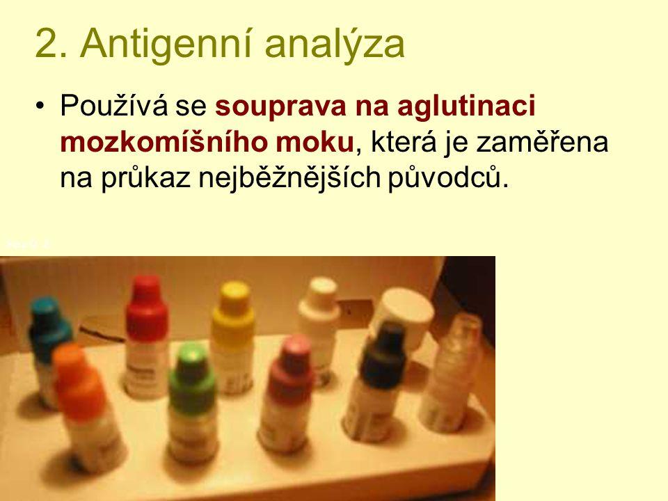 2. Antigenní analýza Používá se souprava na aglutinaci mozkomíšního moku, která je zaměřena na průkaz nejběžnějších původců. Foto O. Z.