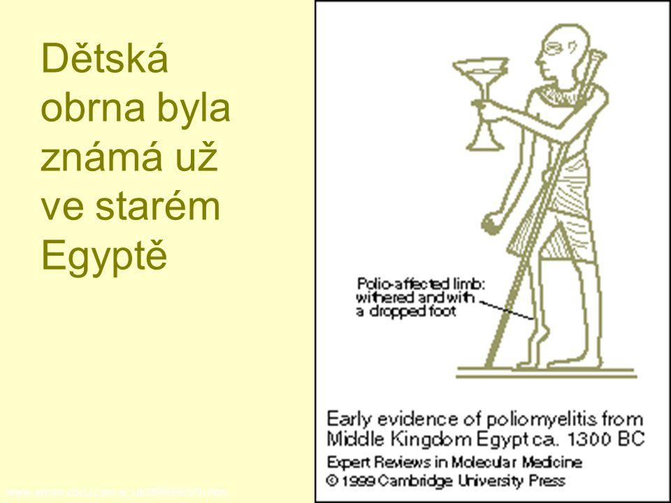 Dětská obrna byla známá už ve starém Egyptě www-ermm.cbcu.cam.ac.uk/9900085Xh.htm.