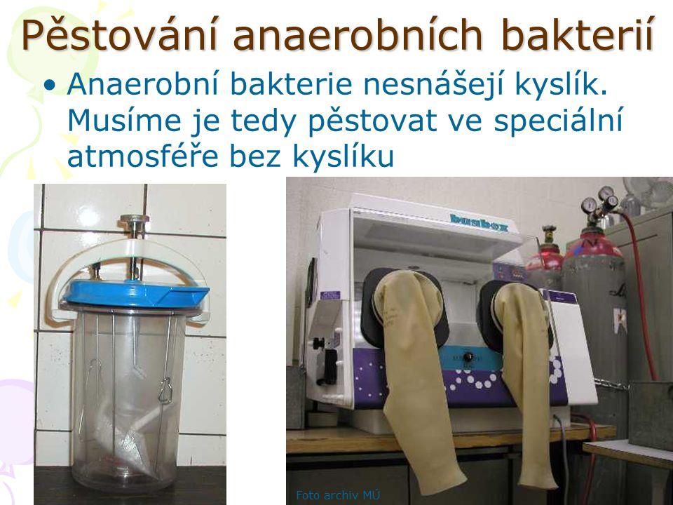 Pěstování anaerobních bakterií Anaerobní bakterie nesnášejí kyslík. Musíme je tedy pěstovat ve speciální atmosféře bez kyslíku Foto archiv MÚ