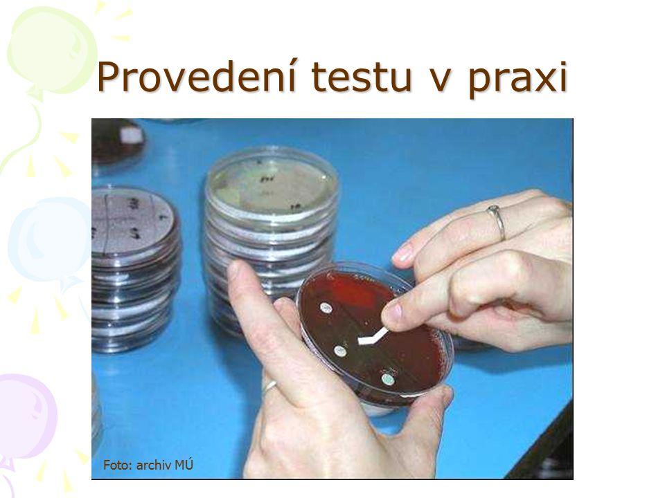 Provedení testu v praxi Foto: archiv MÚ