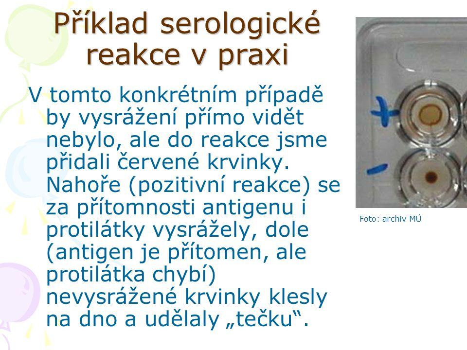 Příklad serologické reakce v praxi V tomto konkrétním případě by vysrážení přímo vidět nebylo, ale do reakce jsme přidali červené krvinky. Nahoře (poz