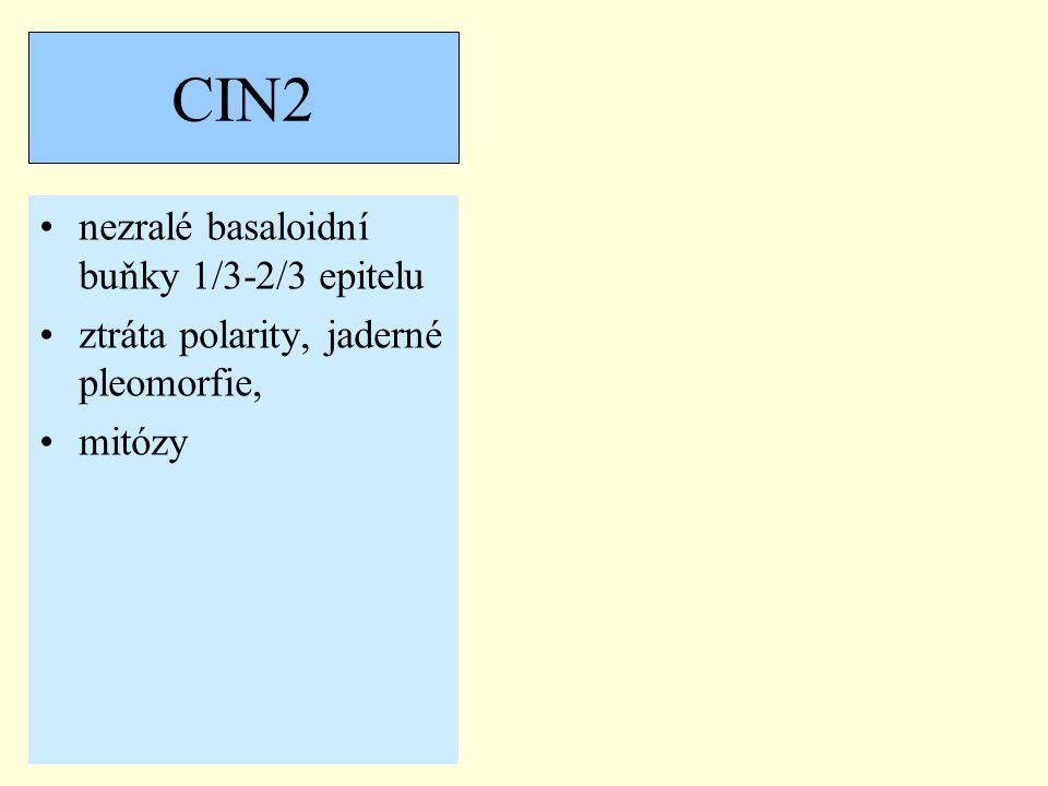 CIN2 nezralé basaloidní buňky 1/3-2/3 epitelu ztráta polarity, jaderné pleomorfie, mitózy