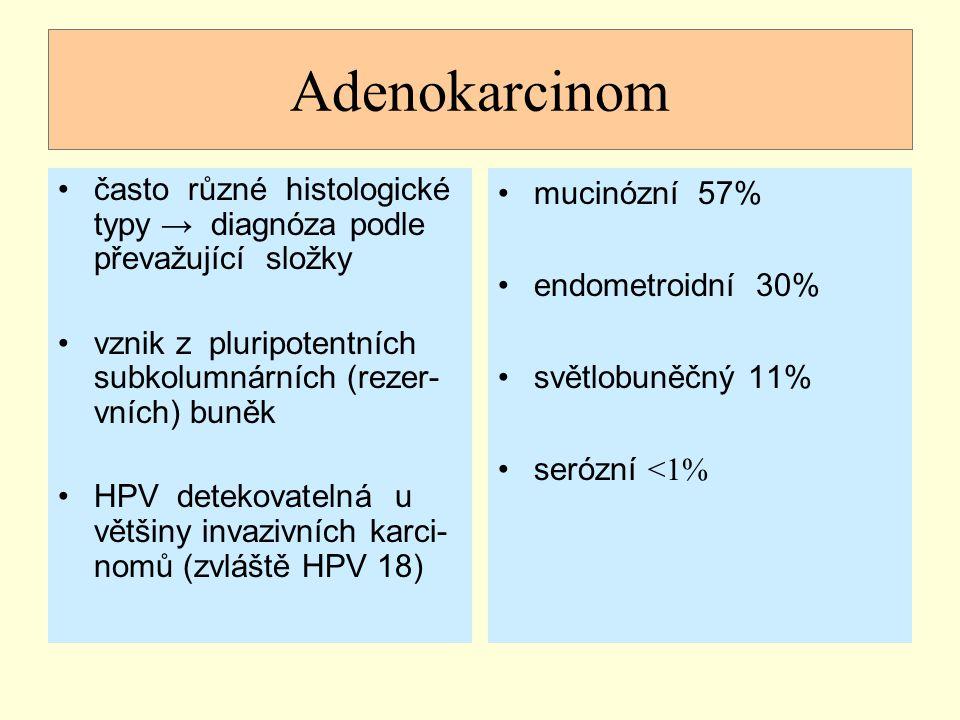 Adenokarcinom často různé histologické typy → diagnóza podle převažující složky vznik z pluripotentních subkolumnárních (rezer- vních) buněk HPV detek