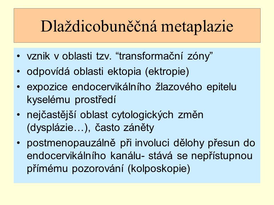 """Dlaždicobuněčná metaplazie vznik v oblasti tzv. """"transformační zóny"""" odpovídá oblasti ektopia (ektropie) expozice endocervikálního žlazového epitelu k"""