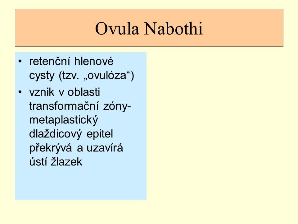 """Ovula Nabothi retenční hlenové cysty (tzv. """"ovulóza"""") vznik v oblasti transformační zóny- metaplastický dlaždicový epitel překrývá a uzavírá ústí žlaz"""