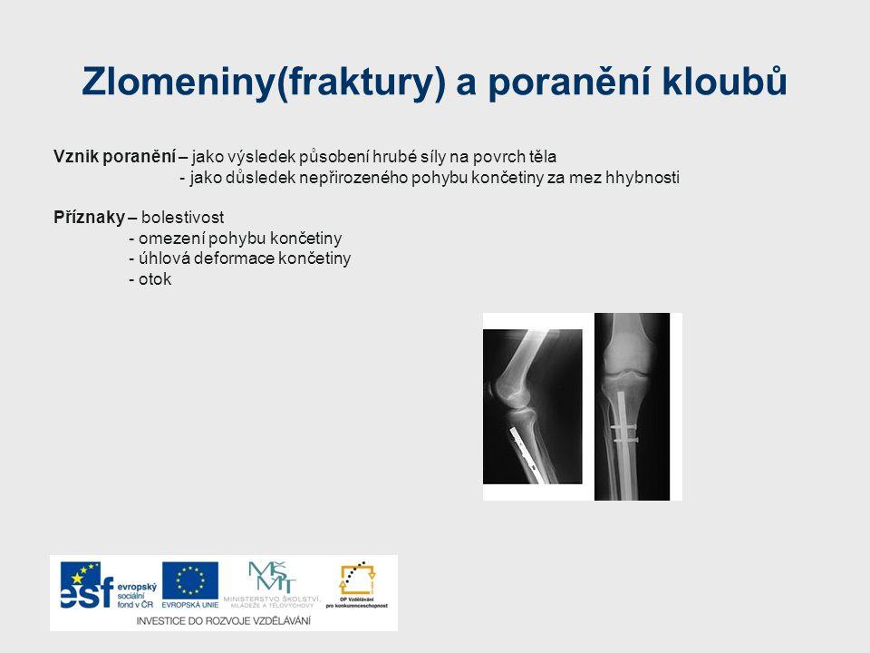 Zlomeniny(fraktury) a poranění kloubů Vznik poranění – jako výsledek působení hrubé síly na povrch těla - jako důsledek nepřirozeného pohybu končetiny