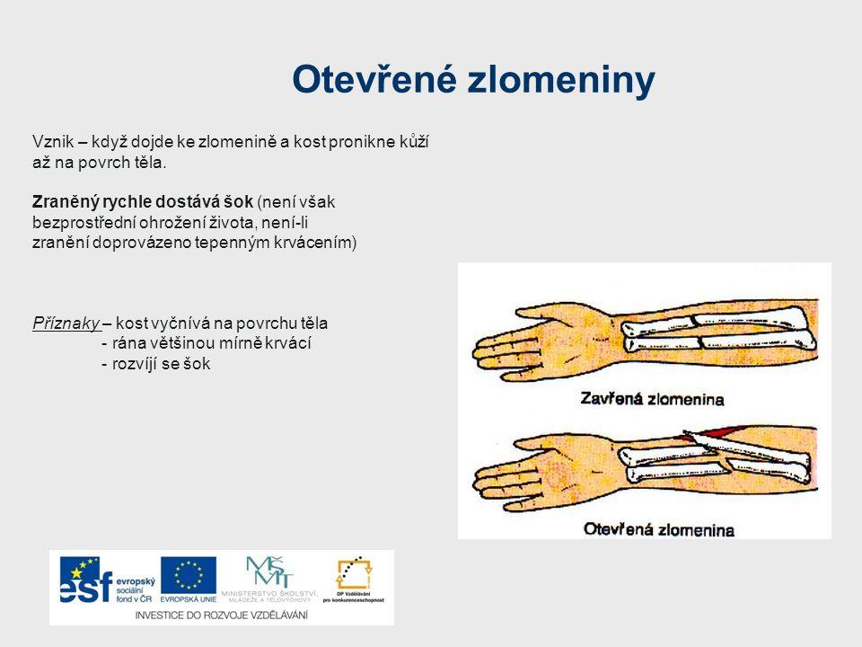 Otevřené zlomeniny – první pomoc První pomoc – zraněného položíme - voláme co nejrychleji záchrannou službu - výčnělky kosti nikdy nezatlačujeme zpět Je-li zlomenina doprovázena velkým krvácením, přiložíme zaškrcovadlo - okolí vyčnívající kosti obložíme a zlehka kryjeme (nesmí tlačit na vyčnívající kost) - končetinu znehybníme - provádíme protišoková opatření
