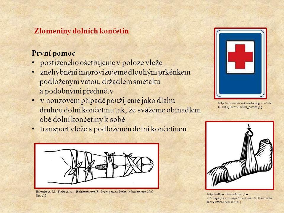 Otevřené zlomeniny je porušena celistvost kůže dochází ke krvácení úlomky kostí vyčnívají kůží na povrch těla hrozí nebezpečí infekce První pomoc postiženého ošetřujeme vždy vleže dezinfikujeme okolí rány obložíme vyčnívající kostní úlomky přiložíme lehký aseptický obvaz na ránu úlomky nesmíme do rány vtlačovat při tepenném krvácení zaškrtíme končetinu nad ránou a zapíšeme čas přiložení zaškrcovadla dále imobilizujeme jako u zavřených zlomenin zajistíme příjezd ZZS http://www.orthopaedicsone.com/display/Images/Paediatric+o pen+supracondylar+humerus+fracture http://commons.wikimedia.org/wiki/File: CZ-IJ03_Prvn%C3%AD_pomoc.jpg