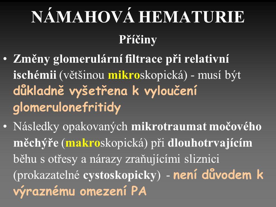 """NÁMAHOVÁ HEMOGLOBINURIE Po dlouhotrvající chůzi nebo běhu na tvrdé podložce (""""pochodová hemoglobinurie ) Intravaskulární hemolýza se zvýšením volného hemoglobinu."""
