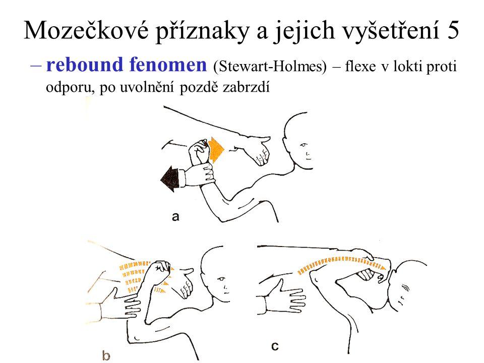 Mozečkové příznaky a jejich vyšetření 5 –rebound fenomen (Stewart-Holmes) – flexe v lokti proti odporu, po uvolnění pozdě zabrzdí