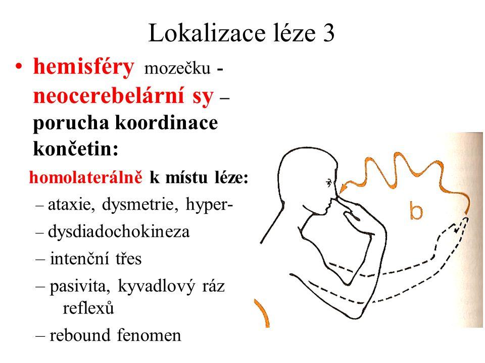 Lokalizace léze 3 hemisféry mozečku - neocerebelární sy – porucha koordinace končetin: homolaterálně k místu léze: – ataxie, dysmetrie, hyper- – dysdiadochokineza – intenční třes – pasivita, kyvadlový ráz reflexů – rebound fenomen
