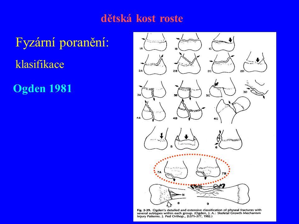 Fyzární poranění: klasifikace Ogden 1981 dětská kost roste