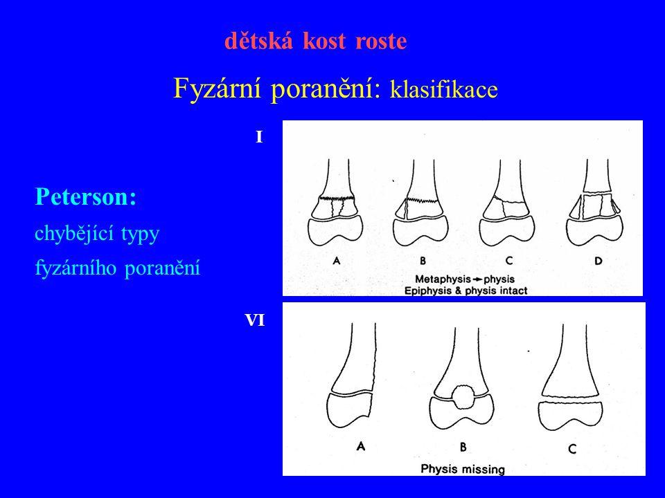 Fyzární poranění: klasifikace Peterson: chybějící typy fyzárního poranění dětská kost roste I VI