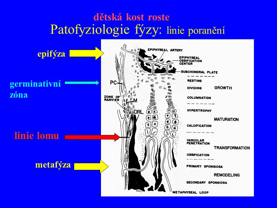 Patofyziologie fýzy: linie poranění epifýza metafýza linie lomu germinativní zóna dětská kost roste