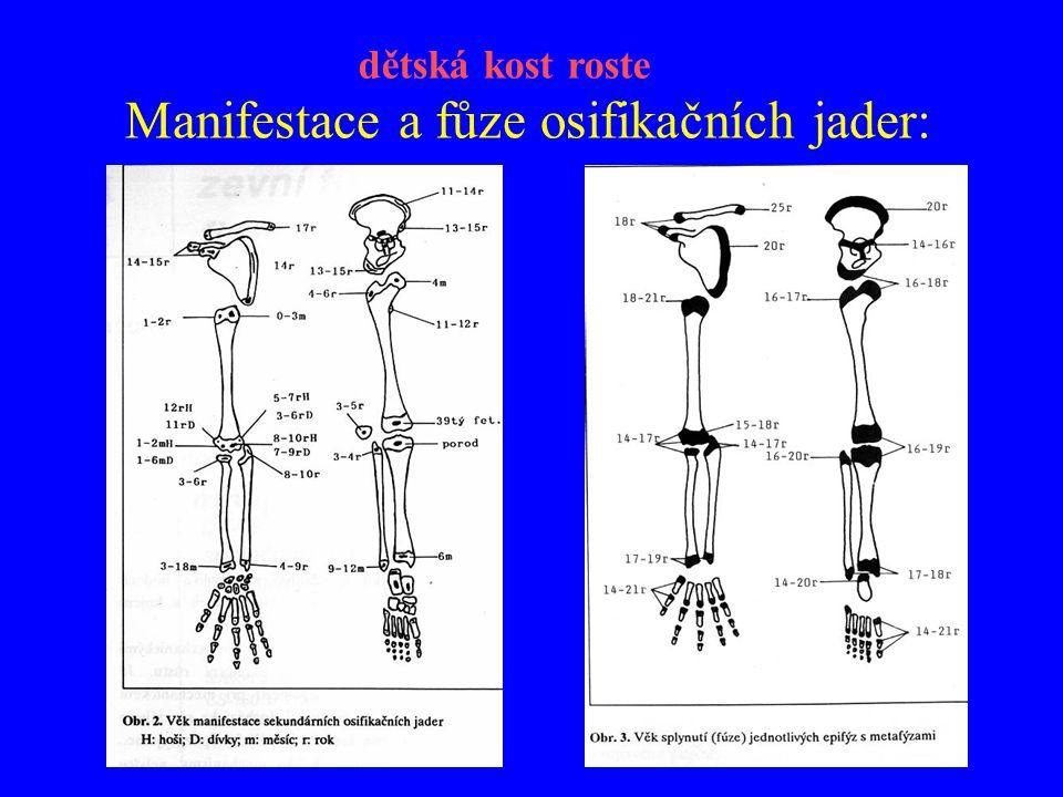 Poranění fýzy (použito z publikace Ogdena) dětská kost roste