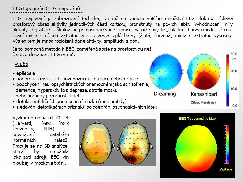 EEG topografie (EEG mapování) EEG mapování je zobrazovací technika, při níž se pomocí většího množství EEG elektrod získává prostorový obraz aktivity