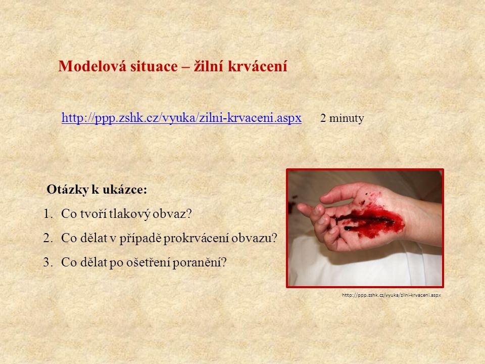http://ppp.zshk.cz/vyuka/zilni-krvaceni.aspx 2 minuty Modelová situace – žilní krvácení http://ppp.zshk.cz/vyuka/zilni-krvaceni.aspx Otázky k ukázce: 1.Co tvoří tlakový obvaz.