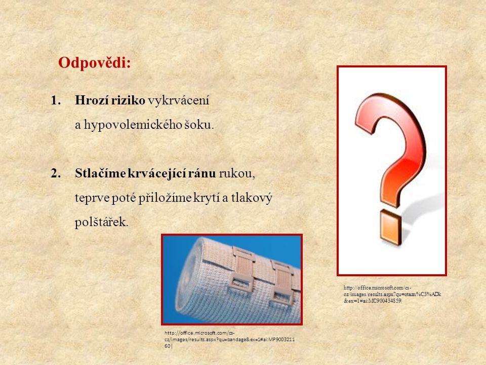 http://commons.wikimedia.org/wiki/File:Grafik_blutkreislauf.jpg Přiřaďte tlakové body a)krční b)podkolenní c)spánkový d)pažní e)stehenní f)břišní g)podklíčkový Řešení: 1.c) 2.a) 3.g) 4.d) 5.f) 6.e) 7.b) Čas: 2 minuty