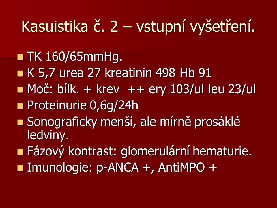 Kasuistika č. 2 – vstupní vyšetření. TK 160/65mmHg. TK 160/65mmHg. K 5,7 urea 27 kreatinin 498 Hb 91 K 5,7 urea 27 kreatinin 498 Hb 91 Moč: bílk. + kr