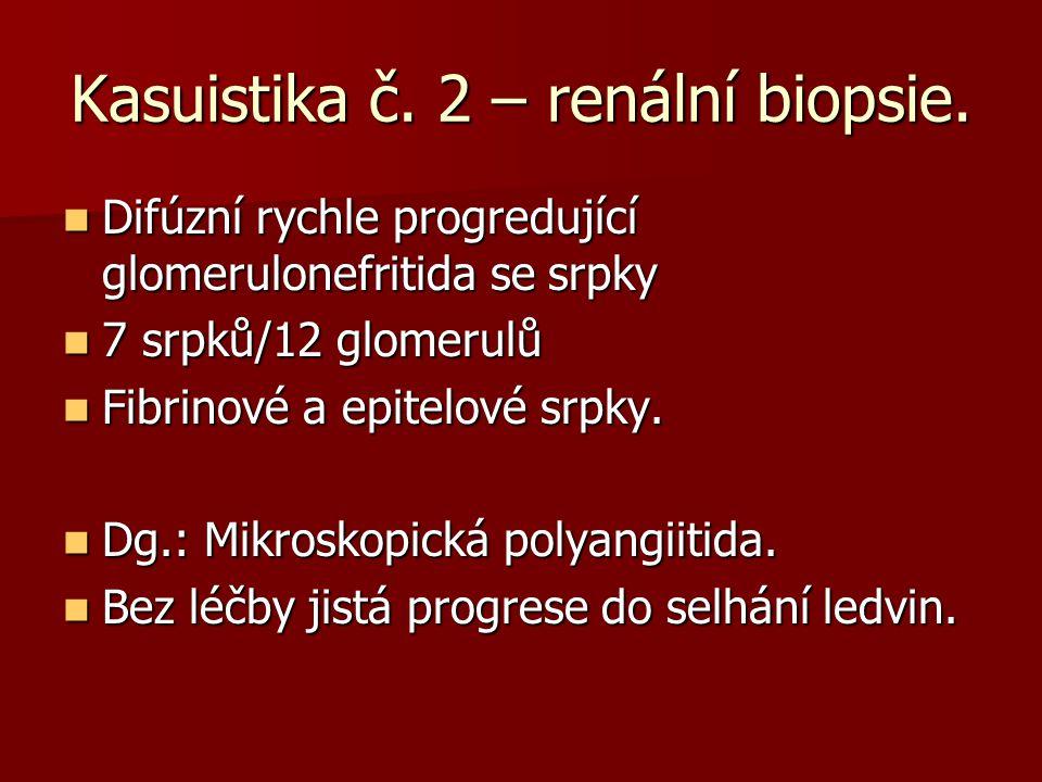 Kasuistika č. 2 – renální biopsie. Difúzní rychle progredující glomerulonefritida se srpky Difúzní rychle progredující glomerulonefritida se srpky 7 s