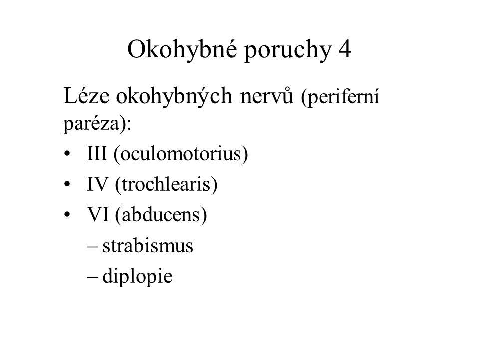 Okohybné poruchy 4 Léze okohybných nervů (periferní paréza): III (oculomotorius) IV (trochlearis) VI (abducens) –strabismus –diplopie