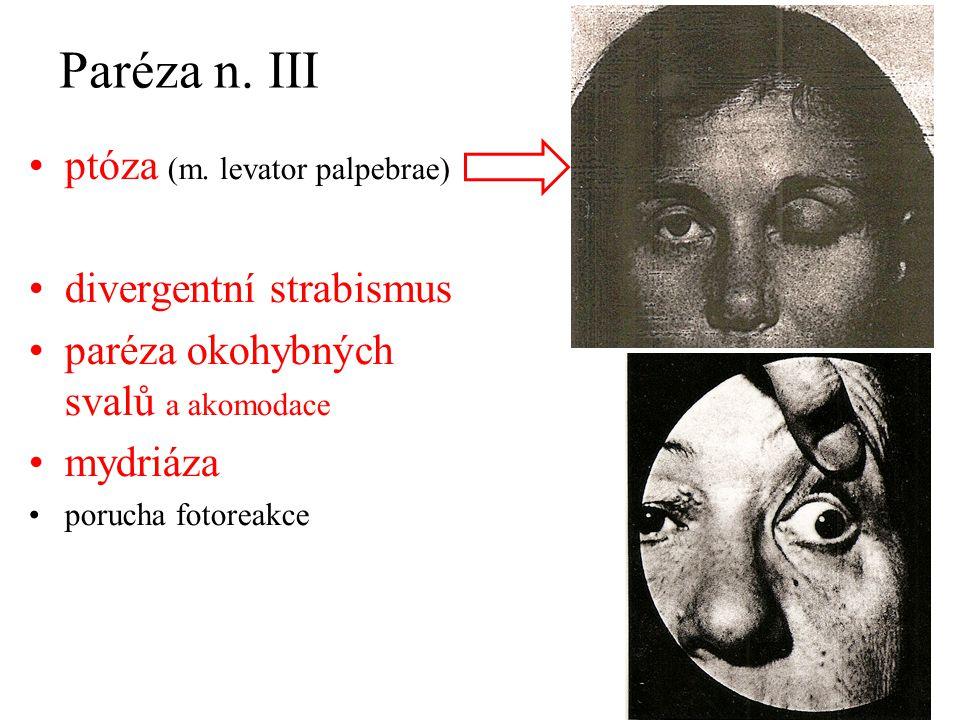 Paréza n. III ptóza (m. levator palpebrae) divergentní strabismus paréza okohybných svalů a akomodace mydriáza porucha fotoreakce