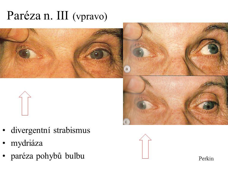 Paréza n. III (vpravo) divergentní strabismus mydriáza paréza pohybů bulbu Perkin