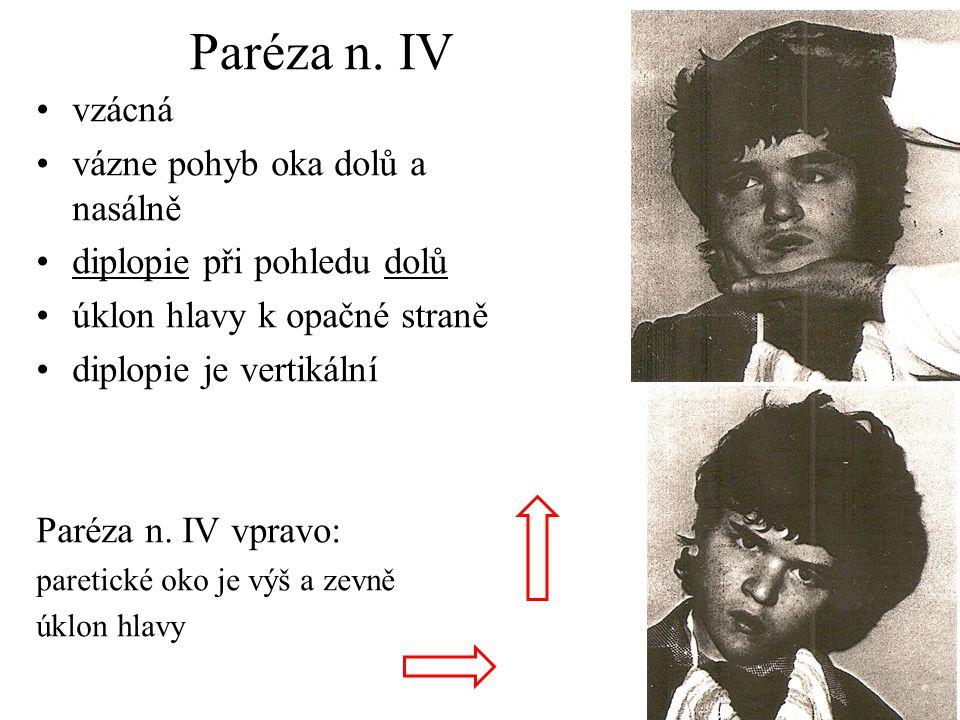 Paréza n. IV vzácná vázne pohyb oka dolů a nasálně diplopie při pohledu dolů úklon hlavy k opačné straně diplopie je vertikální Paréza n. IV vpravo: p