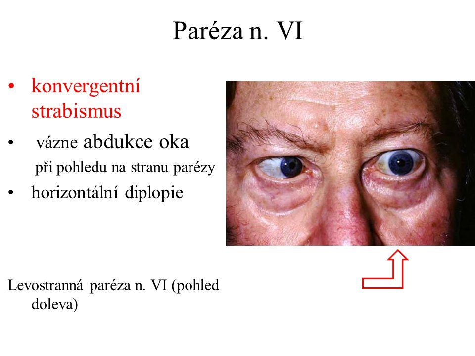 Paréza n. VI konvergentní strabismus vázne abdukce oka při pohledu na stranu parézy horizontální diplopie Levostranná paréza n. VI (pohled doleva)